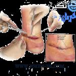 زخم محل جراحی